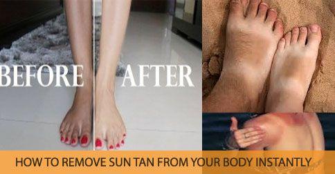 51b7694eccb345cdeabc47a6039359fa - How To Get Rid Of Sun Tan On Brown Skin
