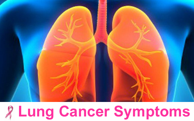 Lung Cancer Symptoms   lung cancer