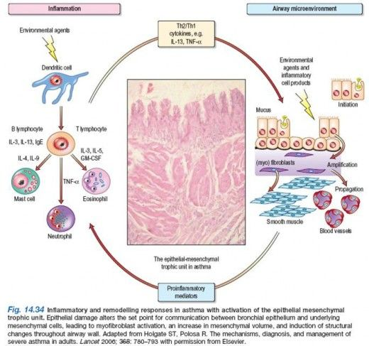 Pathophysiology of Bronchial Asthma - What happens in ...