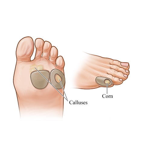 Corns and calluses are thick, hardened layers of skin that develop when your skin tries to protect itself against friction and pressure.  @kohli