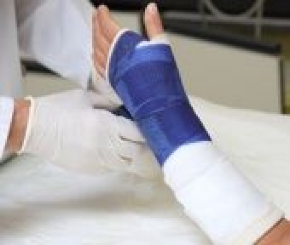 What To Do When Your Cast Absolutely Stinks Jointpainrelief En 2020 Yeso En El Brazo Brazos Remedios