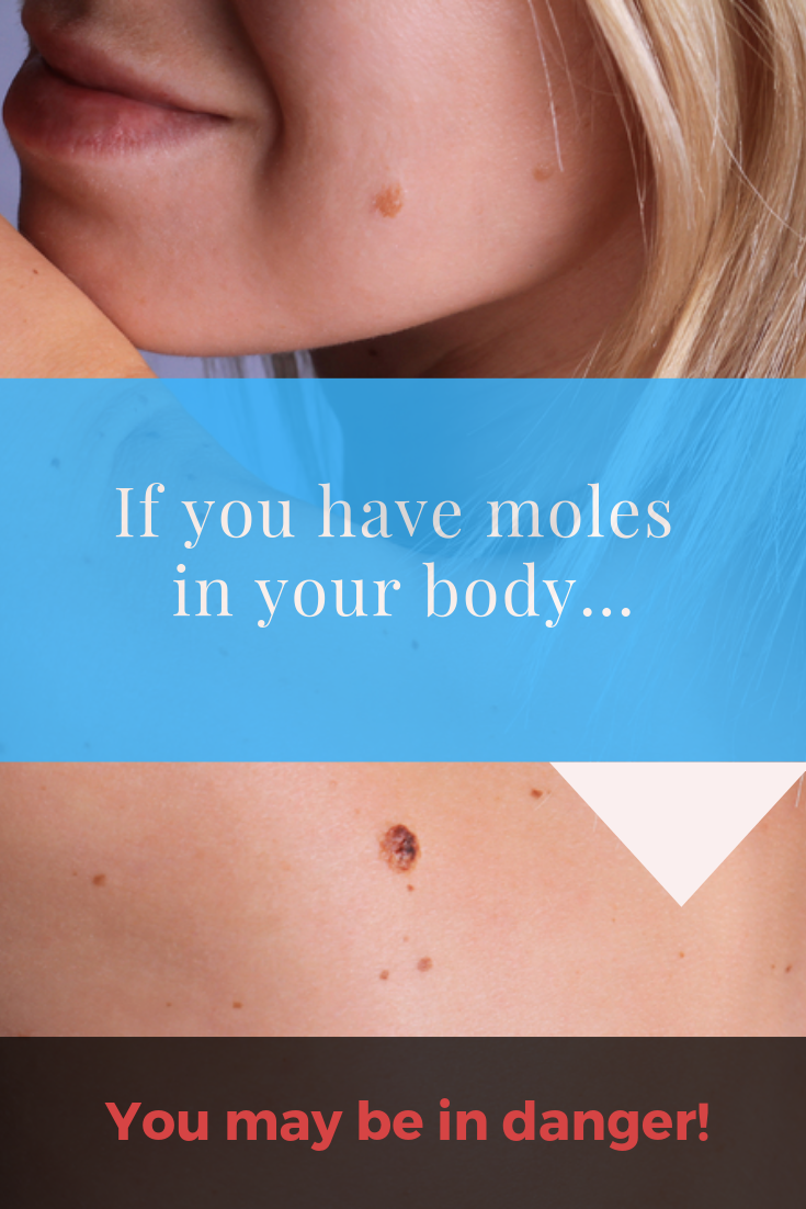 What Are The Moles In Our Body Telling Us Body Our Body Mole
