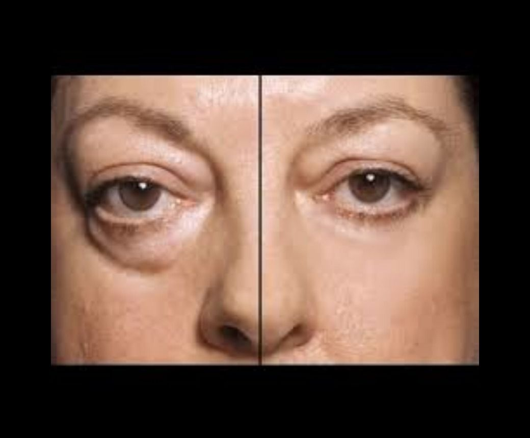 Remove eye bags instantly! Argireline cream products are often