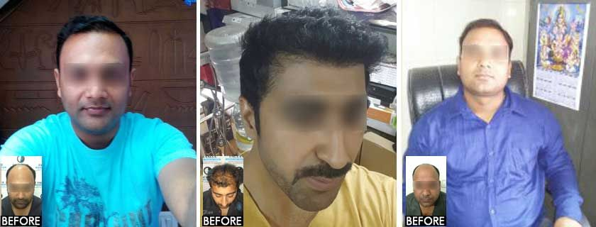 Before And After Fue Hair Transplant In Mumbai Face Value Clinic 4