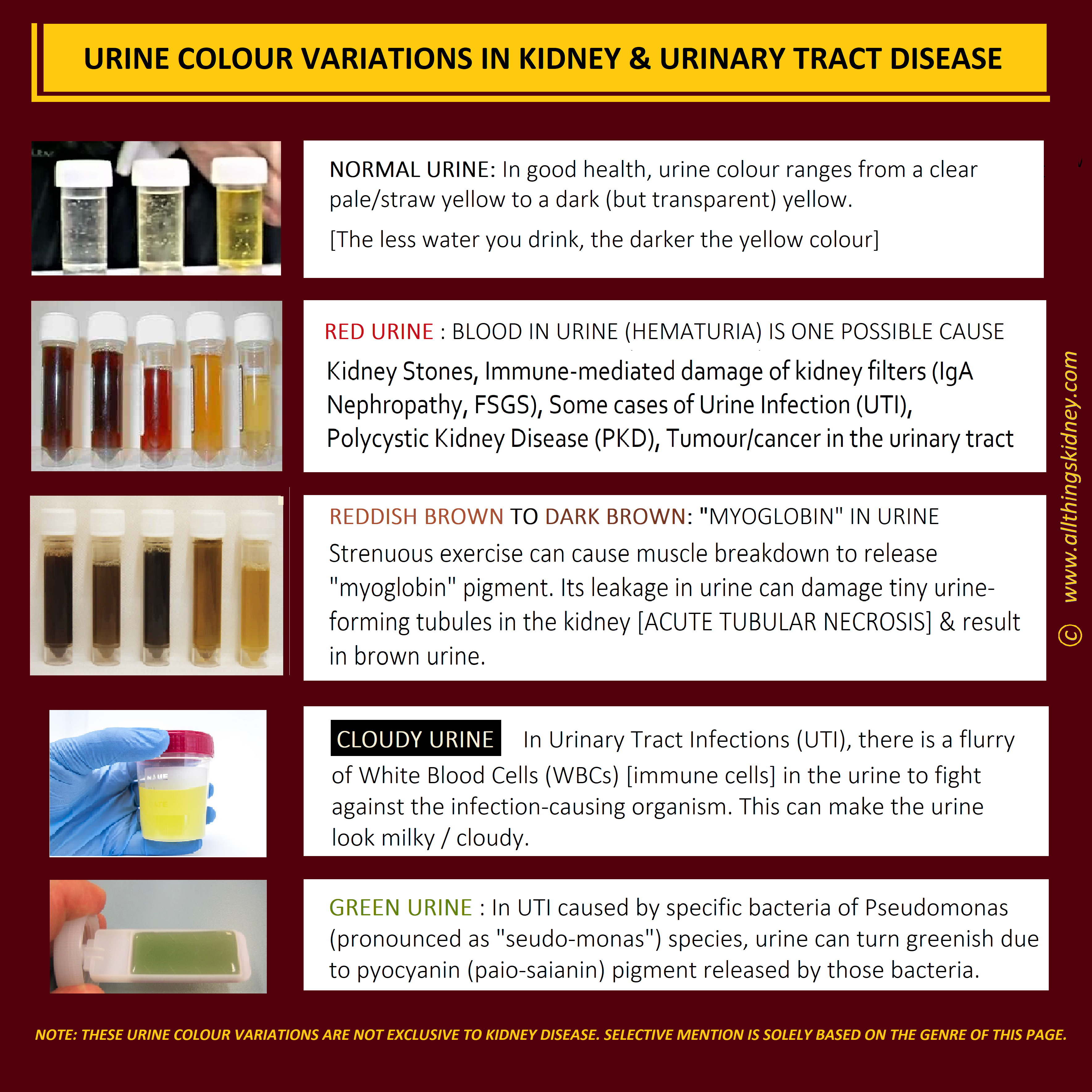 The Post Lists The Conditions Pertaining To Our Kidneys And The Urinary Tract Downstream That Can Potentially Modify Our Urinary Tract Doctor Photo And Video