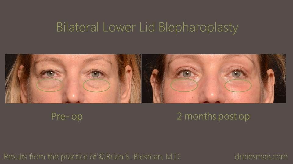 View the before and after gallery for BLL Blepharoplasty from real patients of Dr. Brian S. Biesman located in Nashville, TN.