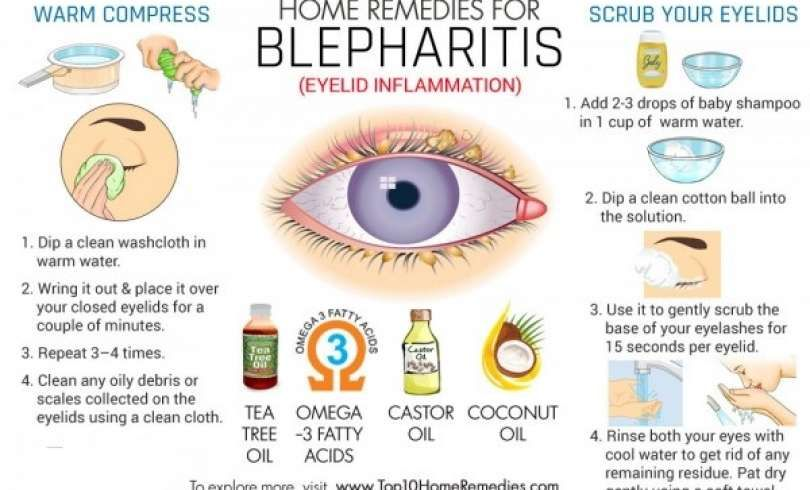 Easy Home Remedy To Get Rid Of Blepharitis Eyelid