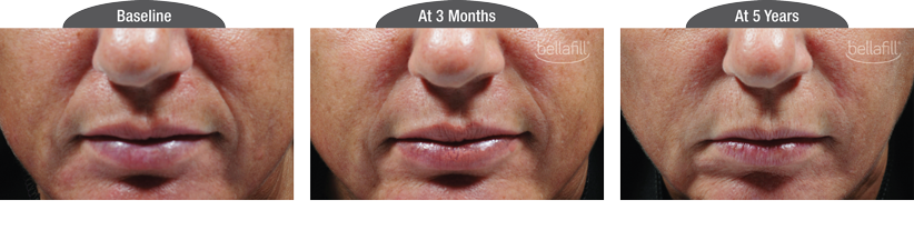 Bellafill Before & After Smile Line Correction, with