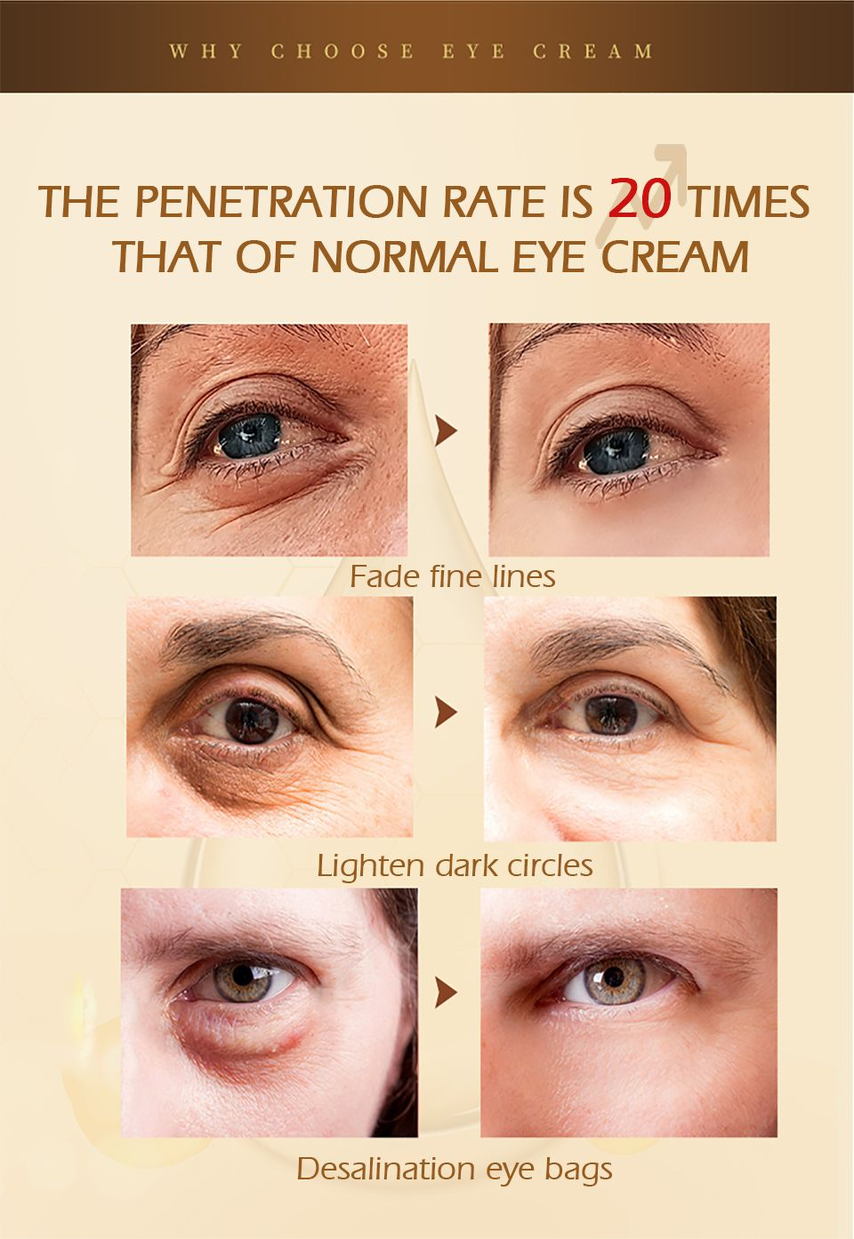under eye anti wrinkle cream