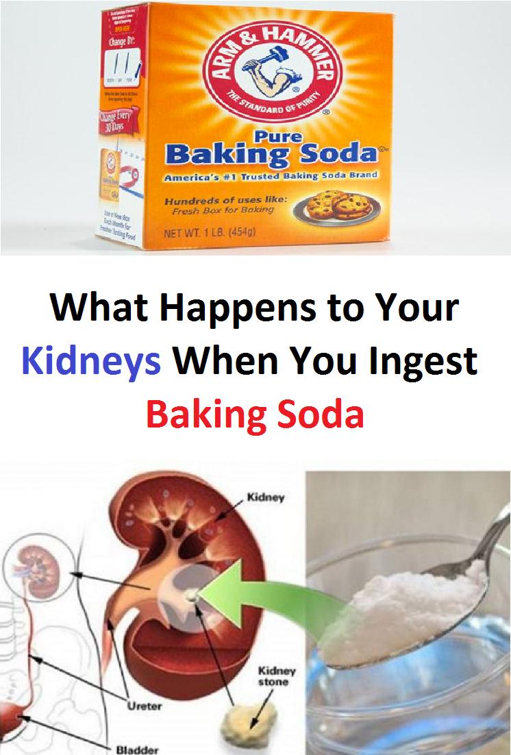 What Happens To Your Kidneys When You Ingest Baking Soda Beautyhackseyelashes Baking Soda Health Baking Soda Natural Cleanse