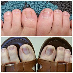 Manuka oil can help you with nail fungus, seborrhoeic dermatitis and other  skin ailments. Read customer… | Manuka essential oil, Seborrhoeic  dermatitis, Manuka oil