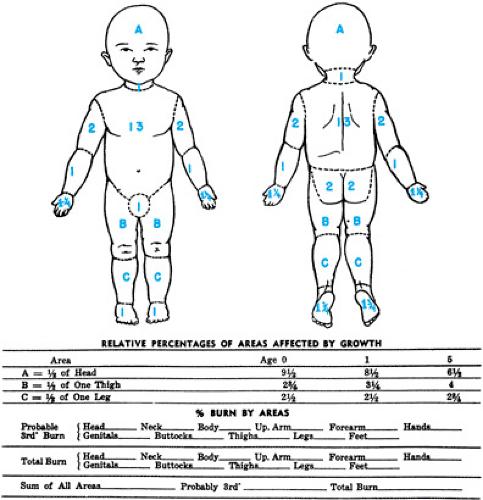 Burns Children And Infants Lund Browder Chart