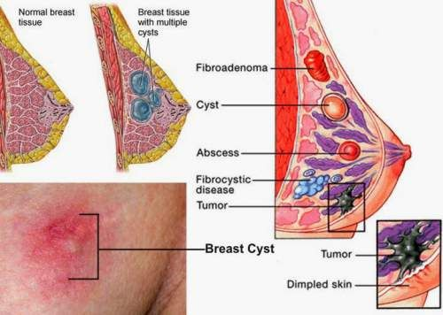 Breast cysts benign