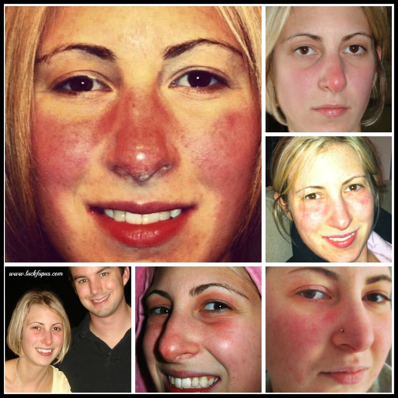 Great blog by MarlaJan. Cover up your butterfly rash with makeup ...