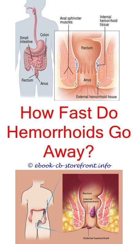 whats a good home remedy for hemroids