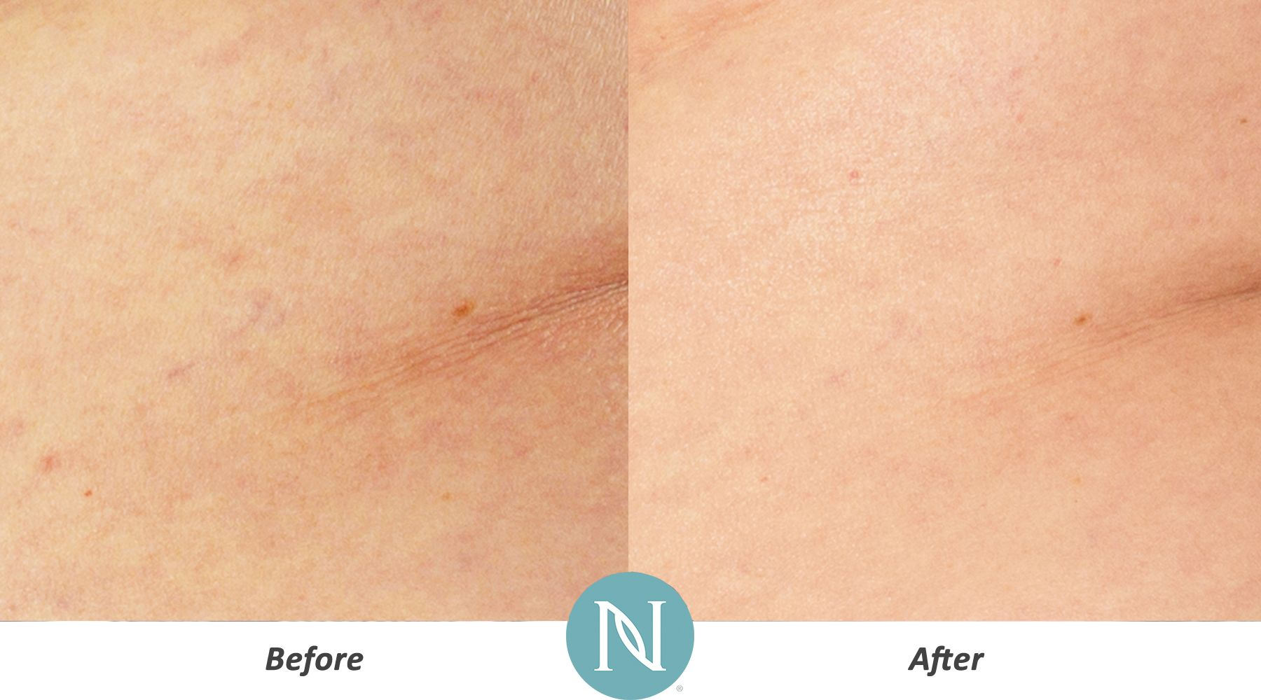 A product that helps smooth and tighten skin for a more toned appearance? Hello, Nerium Firming Body Contour Cream, Optimera Formula! http://MarkKeats.realresults.com/product