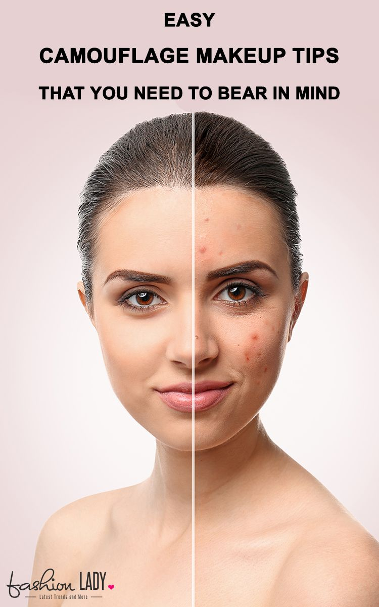 Easy Camouflage Makeup Tips That You Need To Bear In Mind Camouflage Makeup, Laser Scar