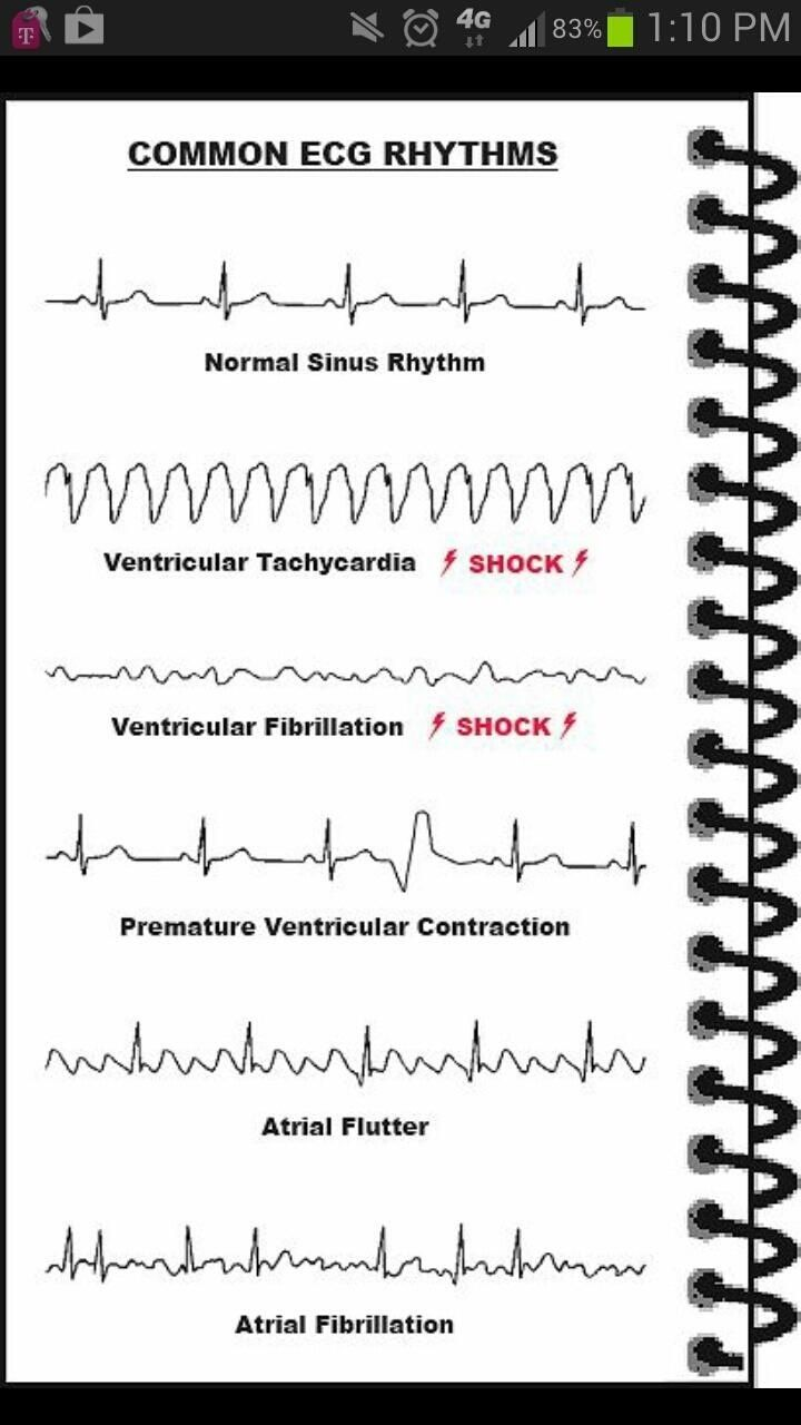 Ecgs abnormal and normal heart rate nursing with