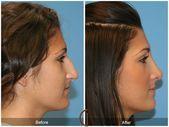 #rhinoplasty #cosmetic #gallery #surgeon #before #orange