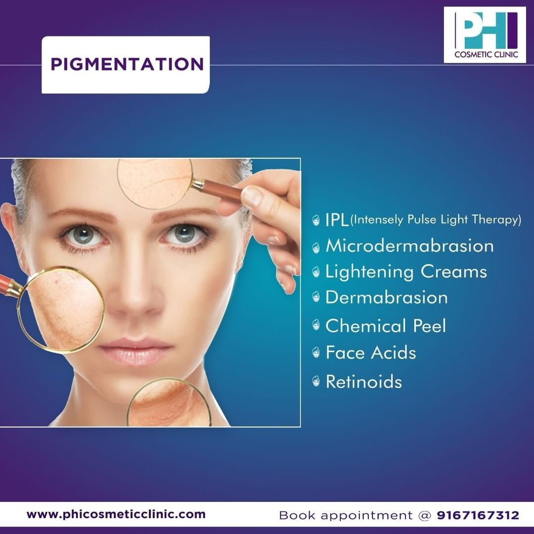 Pigmentation treatments phi cosmetic clinic cosmetic