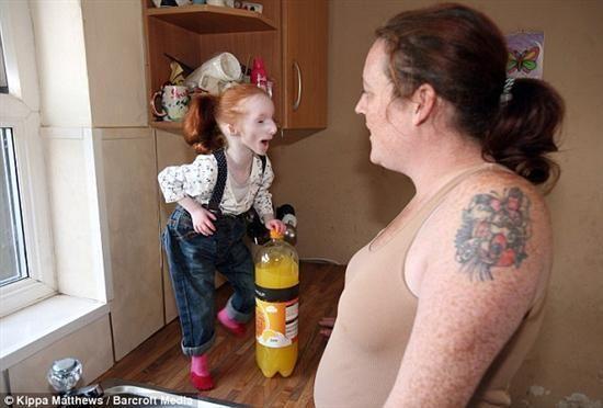Primordial Dwarfism Taylor