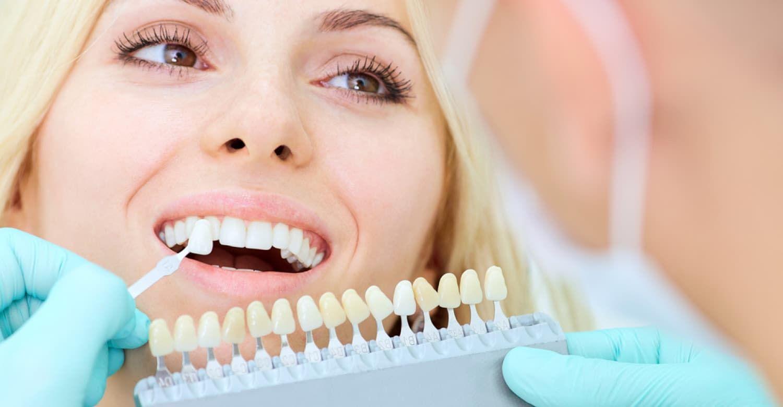 Pin on Teeth Whitening & White Smiles