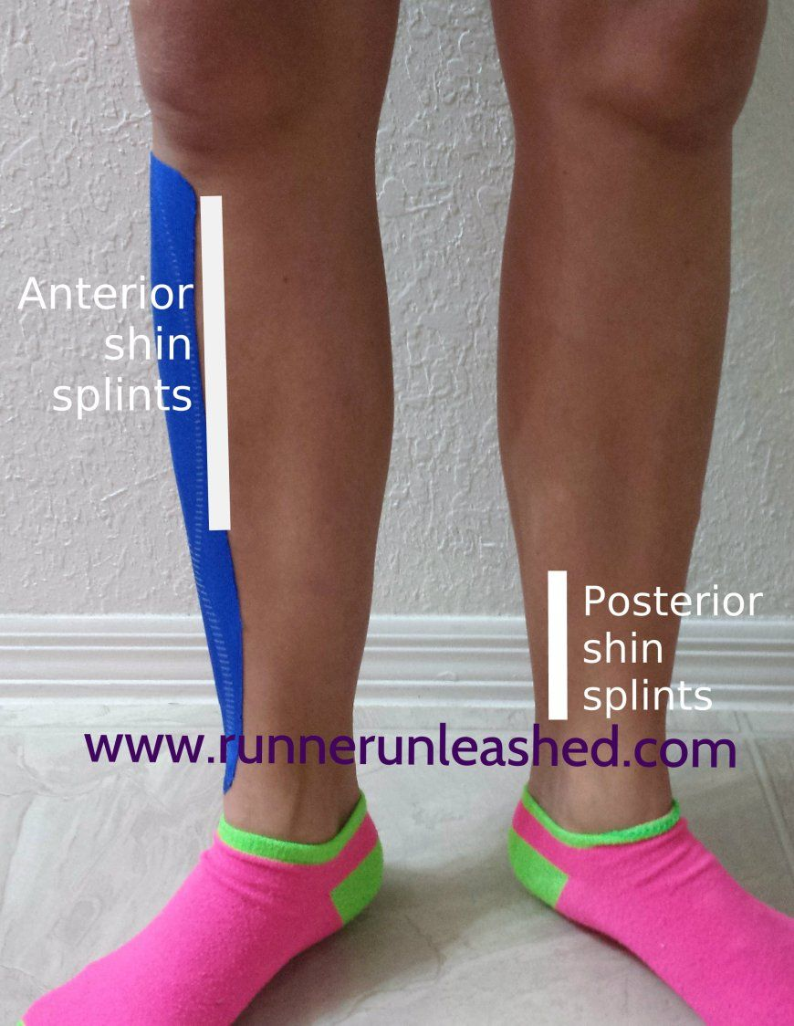 Are you having problems with shin splints?? Anterior