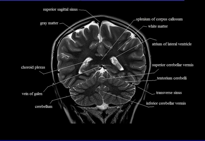 brain anatomy | MRI coronal brain anatomy | free MRI cross sectional ...