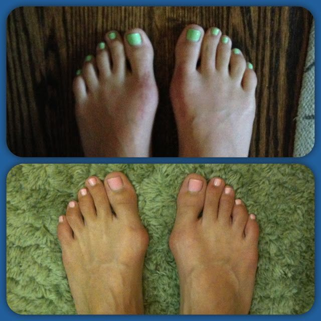 14++ What is a toe bunion trends