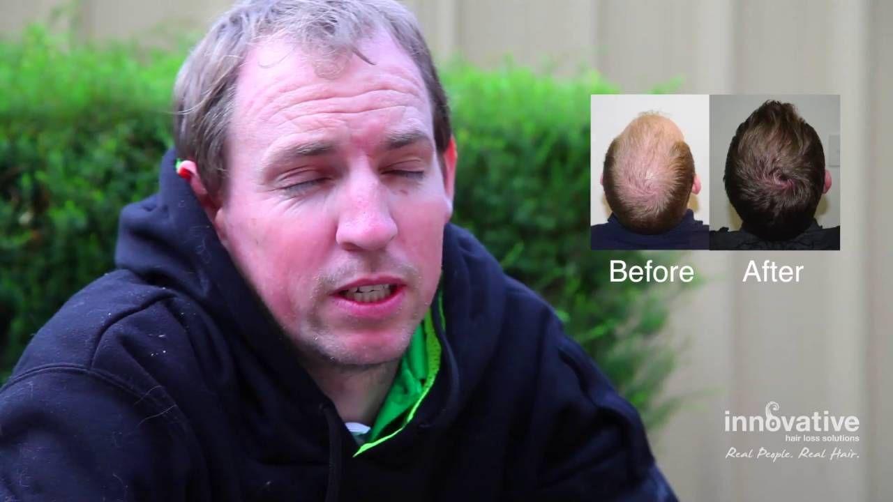 Gordon Rochoy - Innovative Hair Loss Solutions