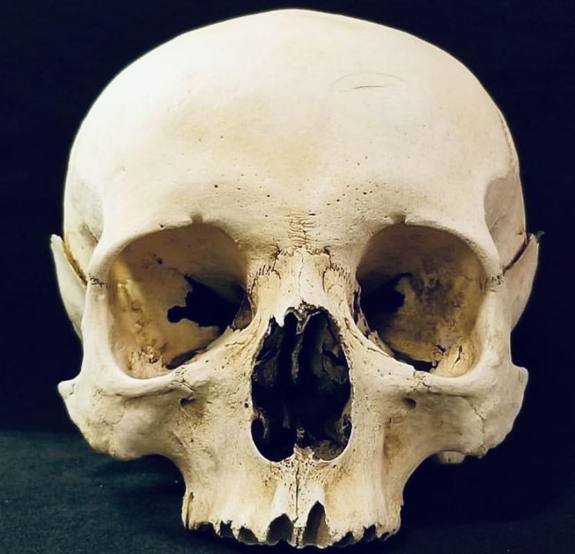 Формы норм черепа человека фото
