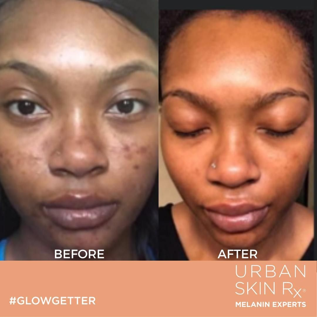 Dark Spot And Even Tone Essentials Package Skin Quiz Uneven Skin Uneven Skin Tone