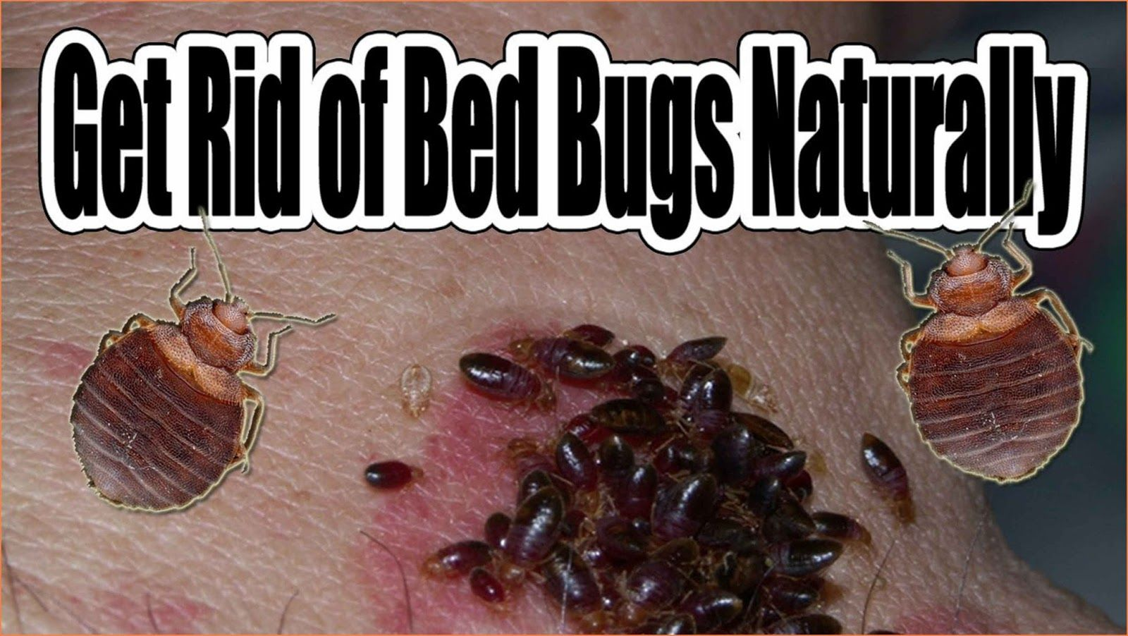How To Get Rid Of Bed Bugs Organically Bed bugs, Rid of