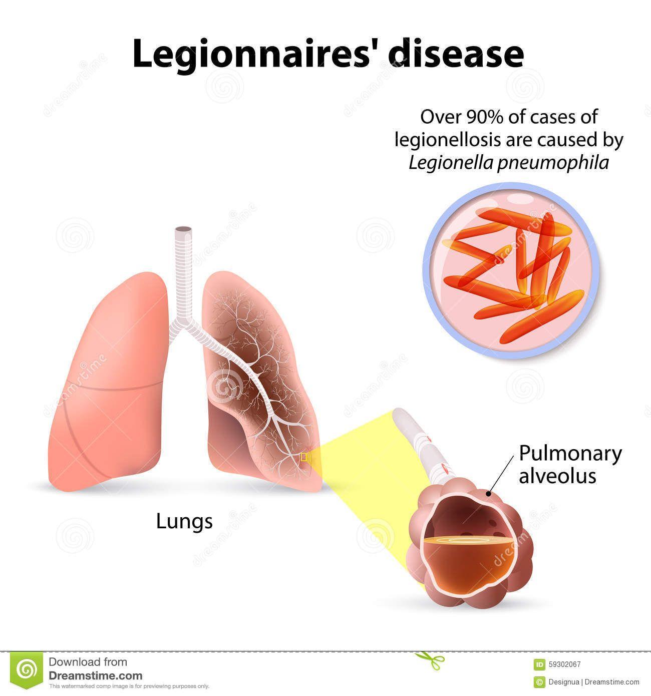 legionnaires-disease-legionellosis-legion-fever-form-o ...