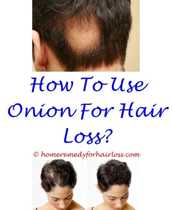 Hair Regrowth Shampoo | Wen shampoo, Hair loss and Baby hair loss