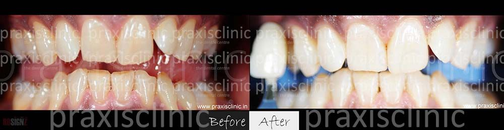 Dramatic results of #teethwhitening , with immediate #teeth #whitening Laser Technology . The entire procedure finished in under and hour by #cosmetic #dentists at Praxis Dental Clinic . Read and view more such whitening photos and transformations at http://smile-designers-india.com/best-dentist-clinic-teeth-whitening-laser-led-mumbai.asp