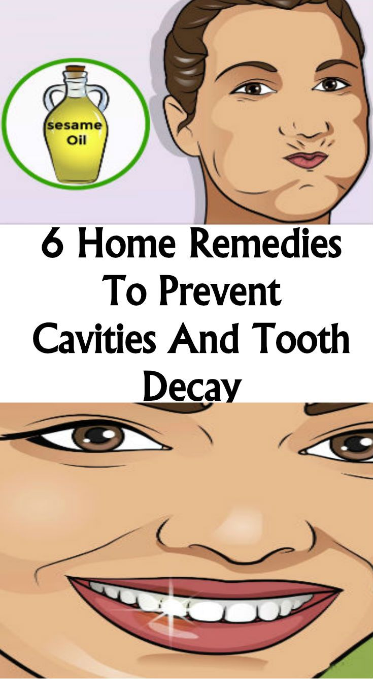 Home Remedies To Prevent Cavities And Tooth Decay  Lovely Tips