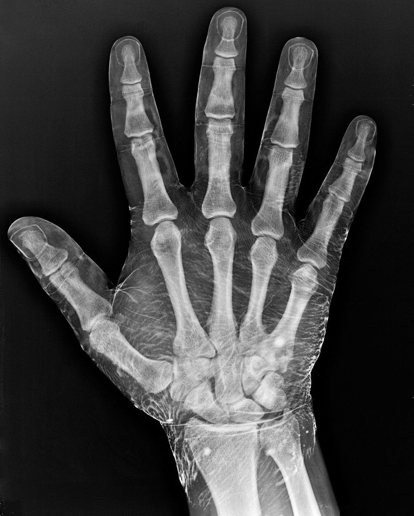 Radiograph of a hand dipped in iodine. | Dips, Radiology and Anatomy