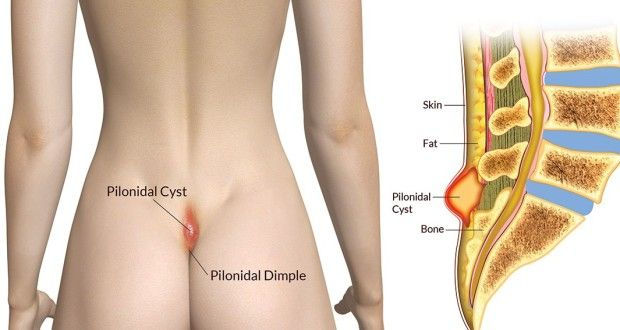 Pilonidal Cyst Causes Treatments And Other Essentials Health