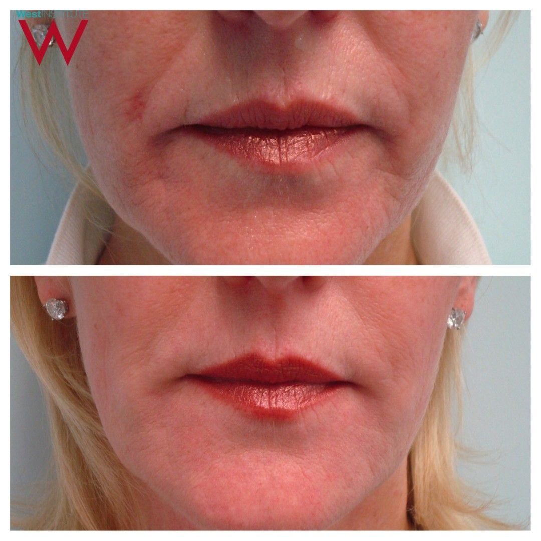 Juvederm Ultra 3 Lips Before And After Cosmeticstutor Org