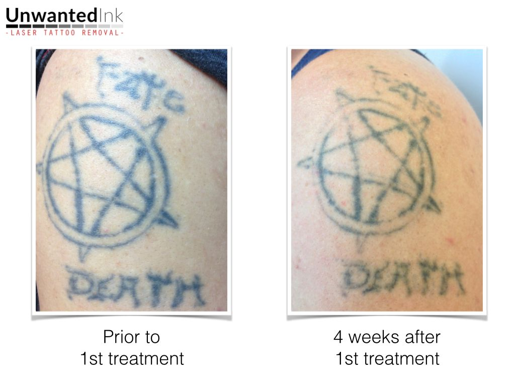 Great Result From First Laser Tattoo Removal Session Unwanted Ink Tattoo Removal Check Out