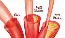 Sciogliere le placche di colesterolo dalle arterie