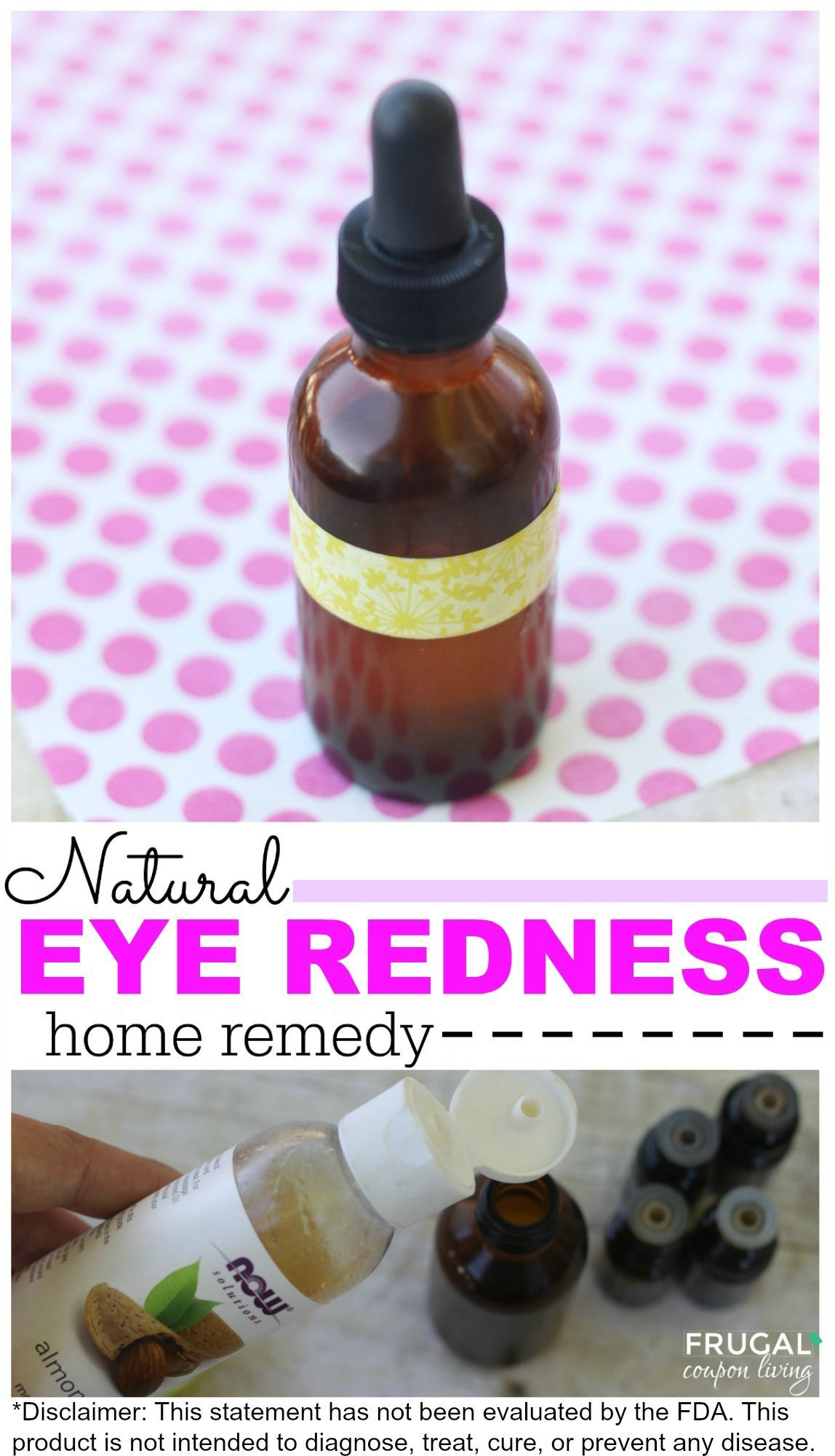 Natural Eye Redness Home Remedy Remedies, Red eyes