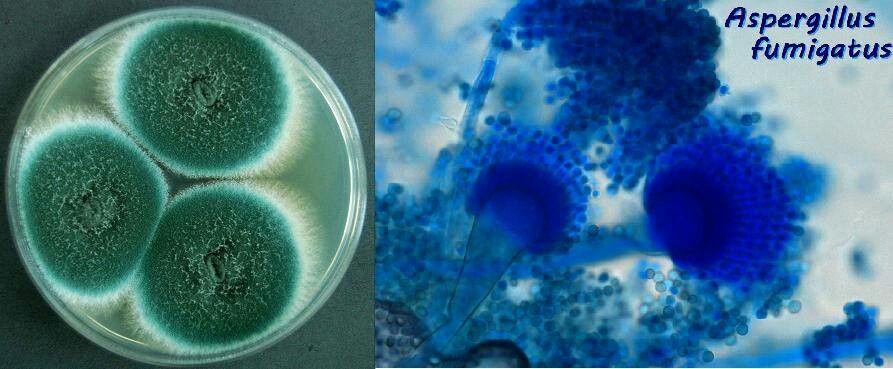Aspergillus fumigatus | Micology | Pinterest ...