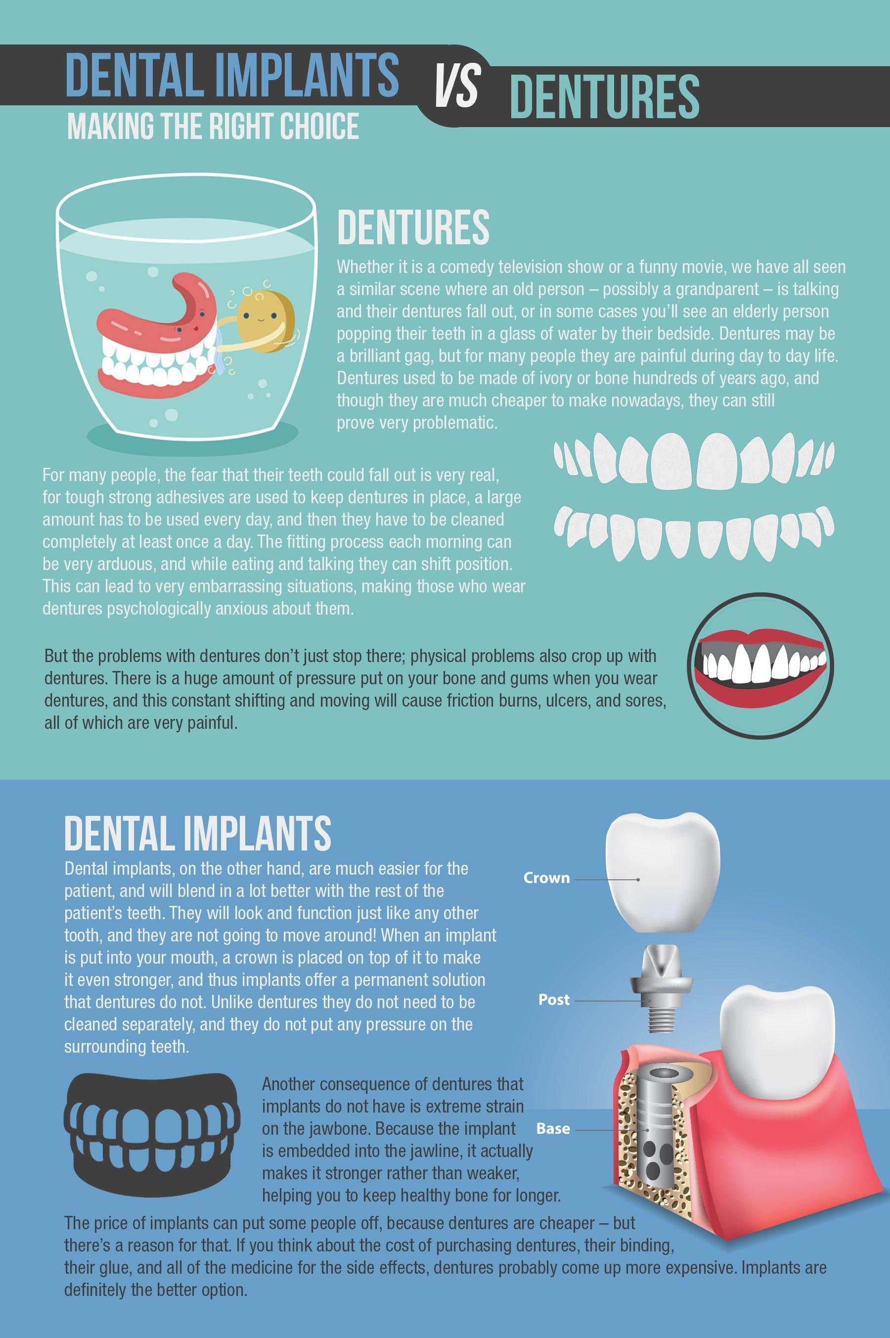 Choosing Between Dental Implants Dentures Holistic Dentist Paige Woods Denture Implants Dental Implants Teeth Implants