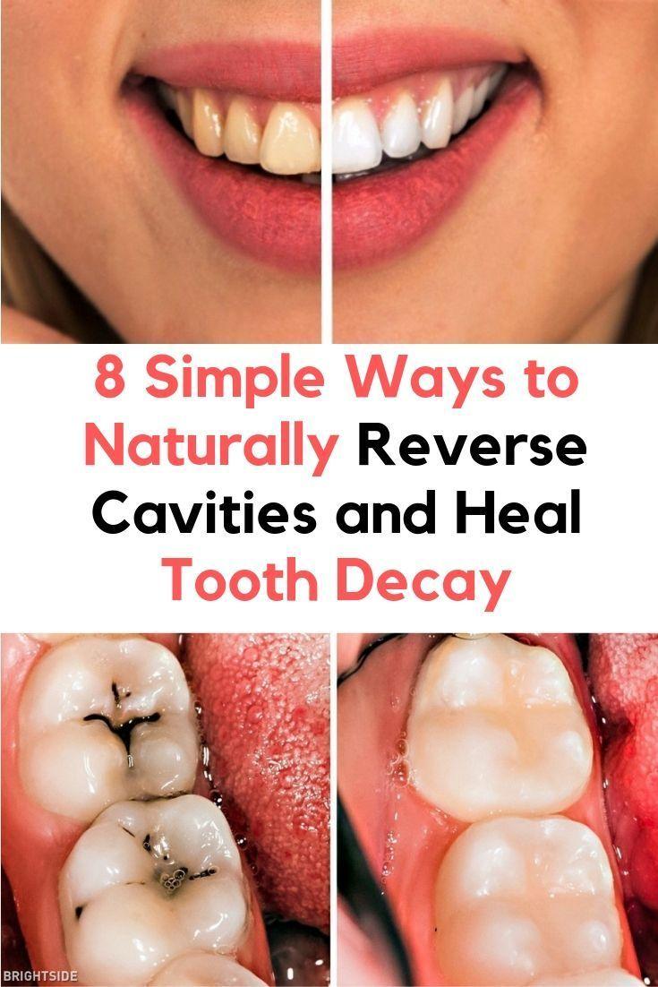 8 einfache Wege, um Karies auf natürliche Weise umzukehren und Karies zu heilen   – | Healthy living |