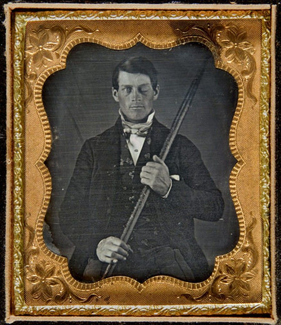 Phineas Gage Unreversed Ext