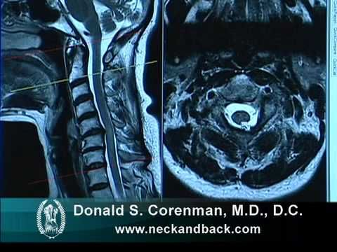 How To Read A Mri Of Cervical Stenosis With Spinal Cord