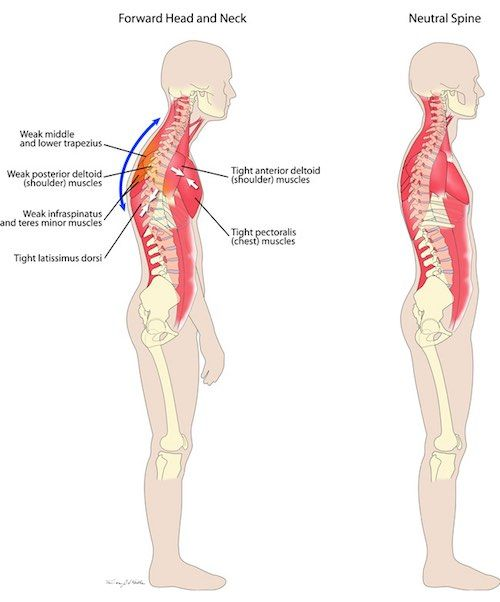 Lose the back pain system eliminate eighteen years of constant lose the back pain system eliminate eighteen years of constant pain in just a few short weeks publicscrutiny Images