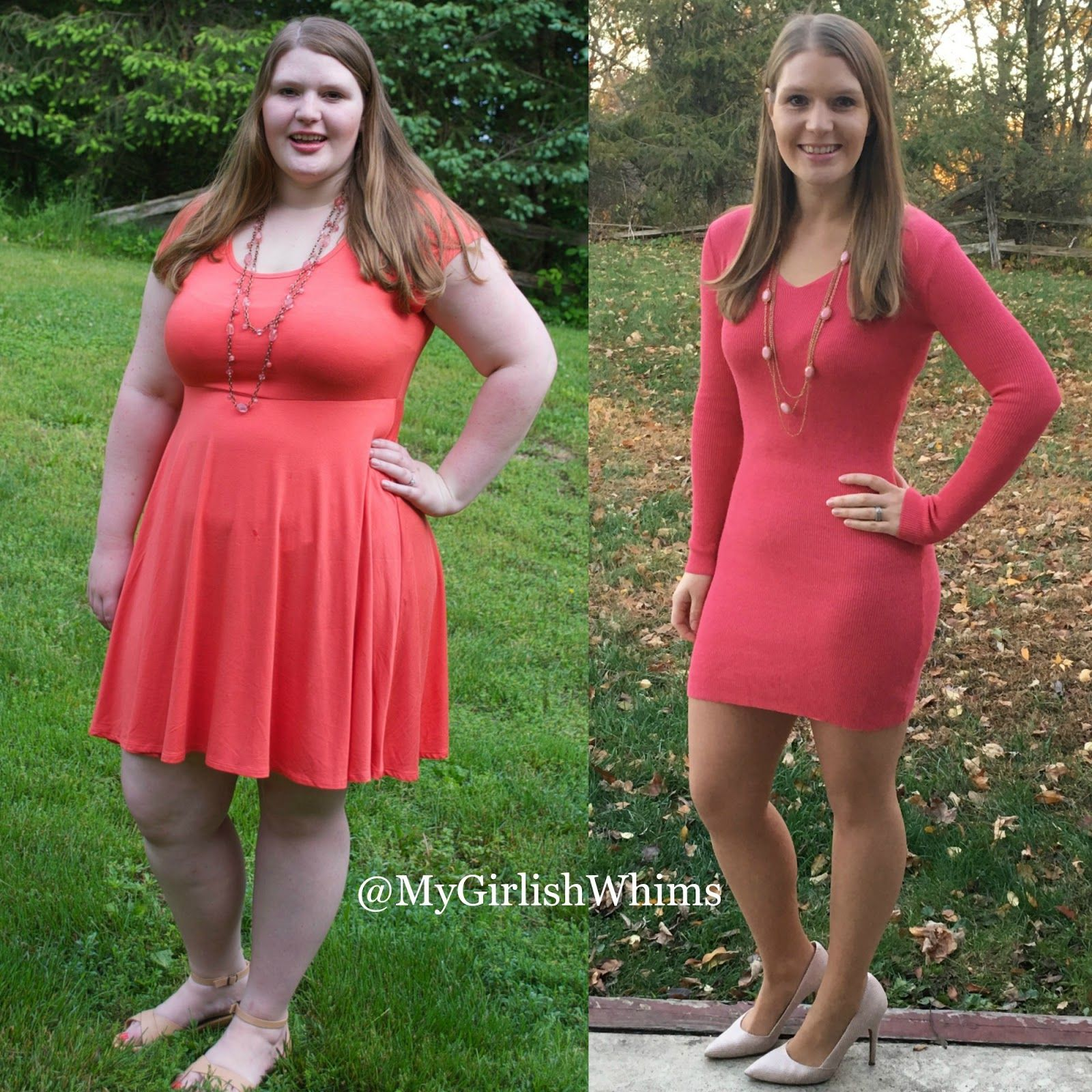 cachexia weight loss